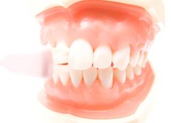 3歳からの歯並び管理をしましょう